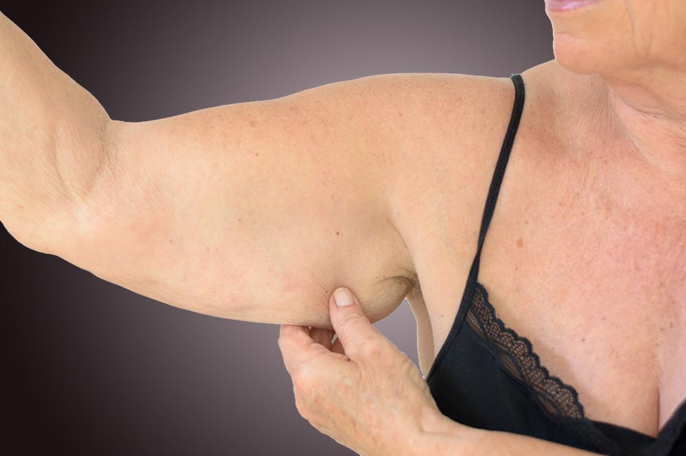 Chirurgie esthétique des bras qui pendent : lifting des bras